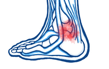 Achilles Tendinopathy (or tendonitis) & Peroneal Tendinopathy