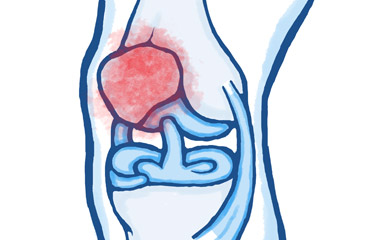 Knee and Lower Leg Pain