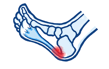 Common Causes of Heel Pain; Plantar Fasciitis & Heel Spurs
