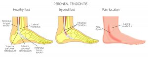 Peroneal Tendinitis Treatment