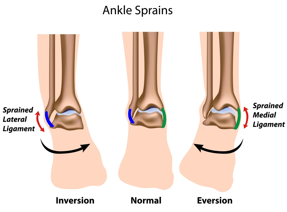 Ankle strains and Inversion Injuries