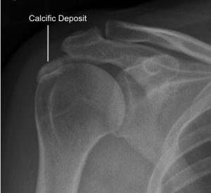 Calcification shoulder