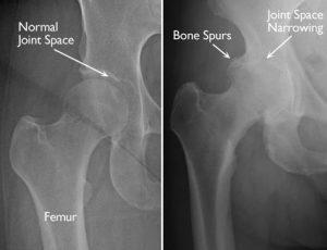 osteoarthritis hip xray