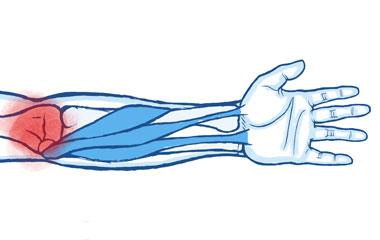 4. Tennis Elbow