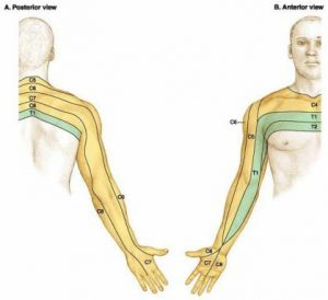 Neck Injuries: Diagram of Referred Pain