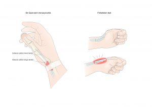 thumb tendon pain