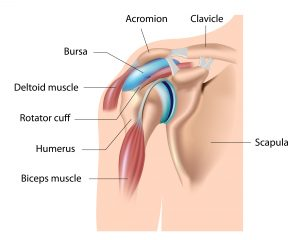 bursitis shoulder