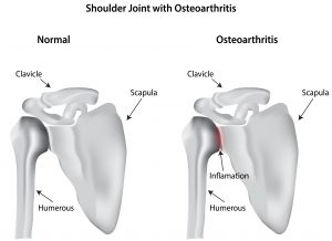 shoulder osteoarthritis treatment