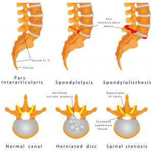 spondylolysis treatment
