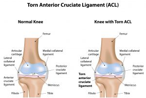 Torn ACL Treatment