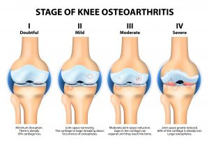osteoarthritis knee treatment
