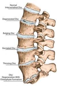 herniated disc neck