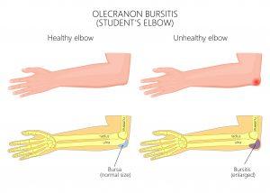 olecranon bursitis treatment