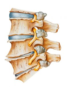 degenerative disc neck