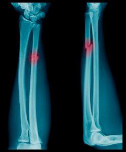 elbow injury treatment