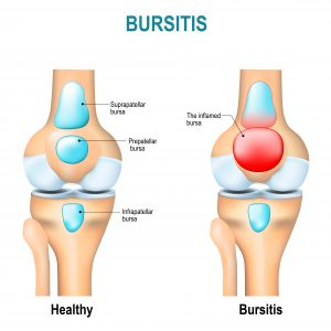 knee bursitis treatment