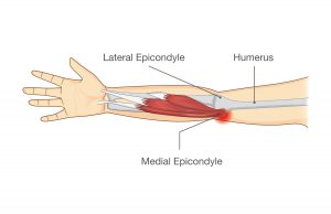golfers elbow treatment