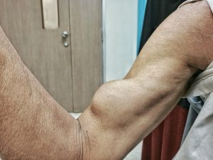 biceps tear treatment