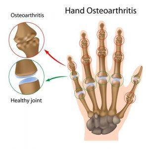 hand osteoarthritis treatment