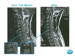 IDD Therapy Disc Treatment Results