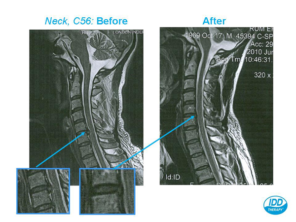 MRI Scans; How does an MRI scanner work?