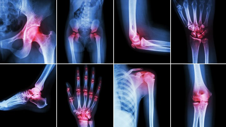 Arthritis. There's a perception that there is nothing that can be done if you have received a diagnosis of arthritis. How true is this ?