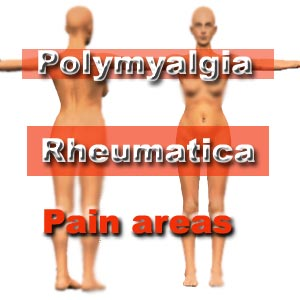 Polymyalgia Rheumatica (or PMR). If you are over 50 years Old this is Something you should know About