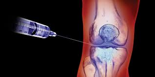 The Controversy of Corticosteroids Injections for the Treatment of Joint Pain