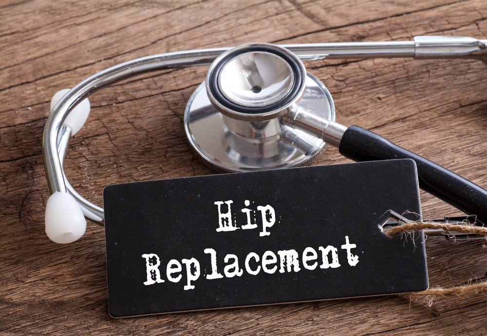 Hip Replacements; A Brief History