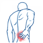 Laminectomy and Lower Back Pain