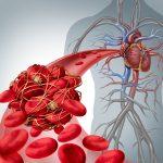 Vitamin K and blood clotting