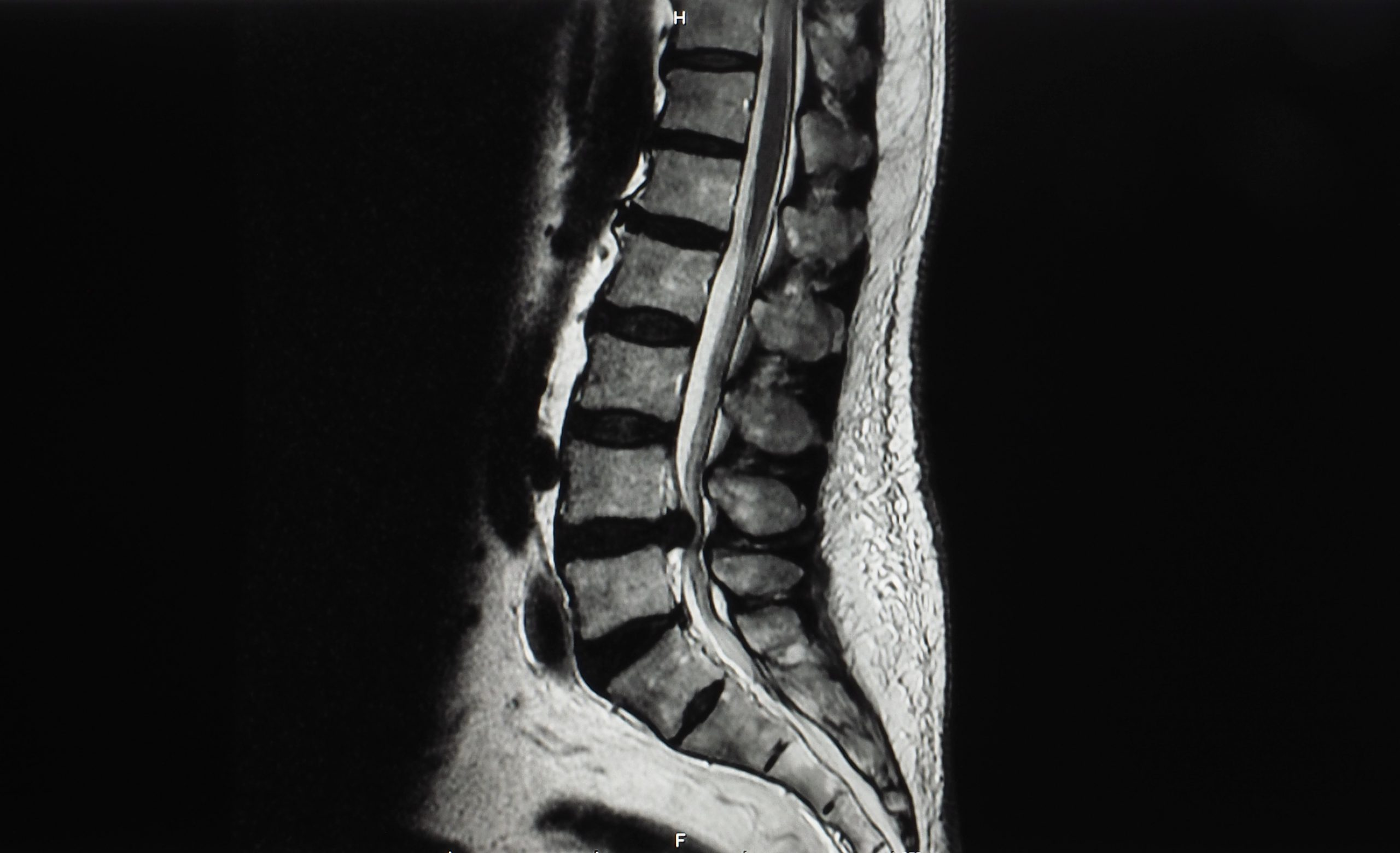 Cauda Equina Syndrome. When a Herniated Disc Becomes a Medical Emergency. Also a New Home Test Kit for Prostate Cancer.
